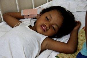 Die fünfjährige Rosebelle hat eine angeborene inkomplette Lippen-Kiefer-Gaumen-Spalte.
