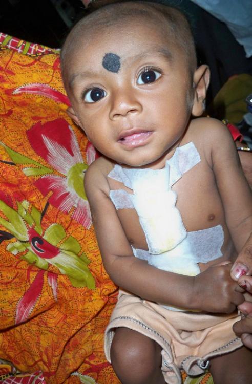 Indien Kalkutta Kind Herz Operation