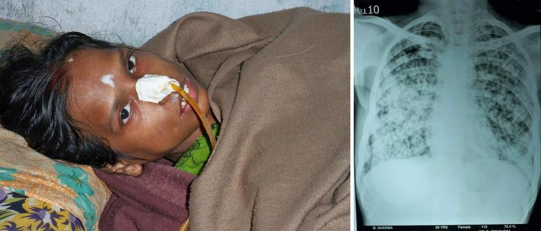 Indien Kalkutta Frau Tuberkulose