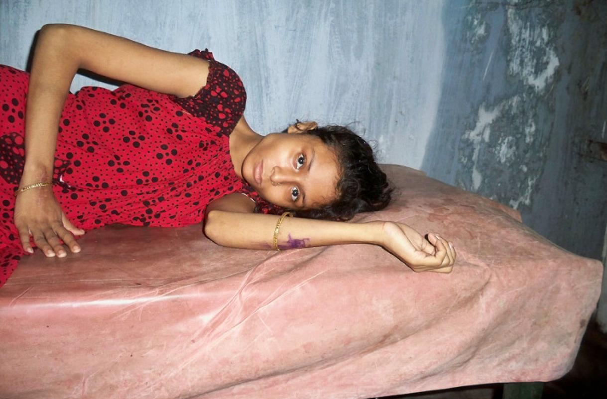 Indien Kalkutta Mädchen Tuberkulose