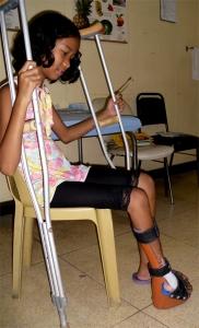 Ein Experte für die orthopedische Rekonstruktion könnte Julien weiterhelfen.