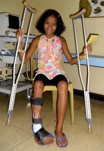 Julien hat eine neue Beinprothese bekommen.