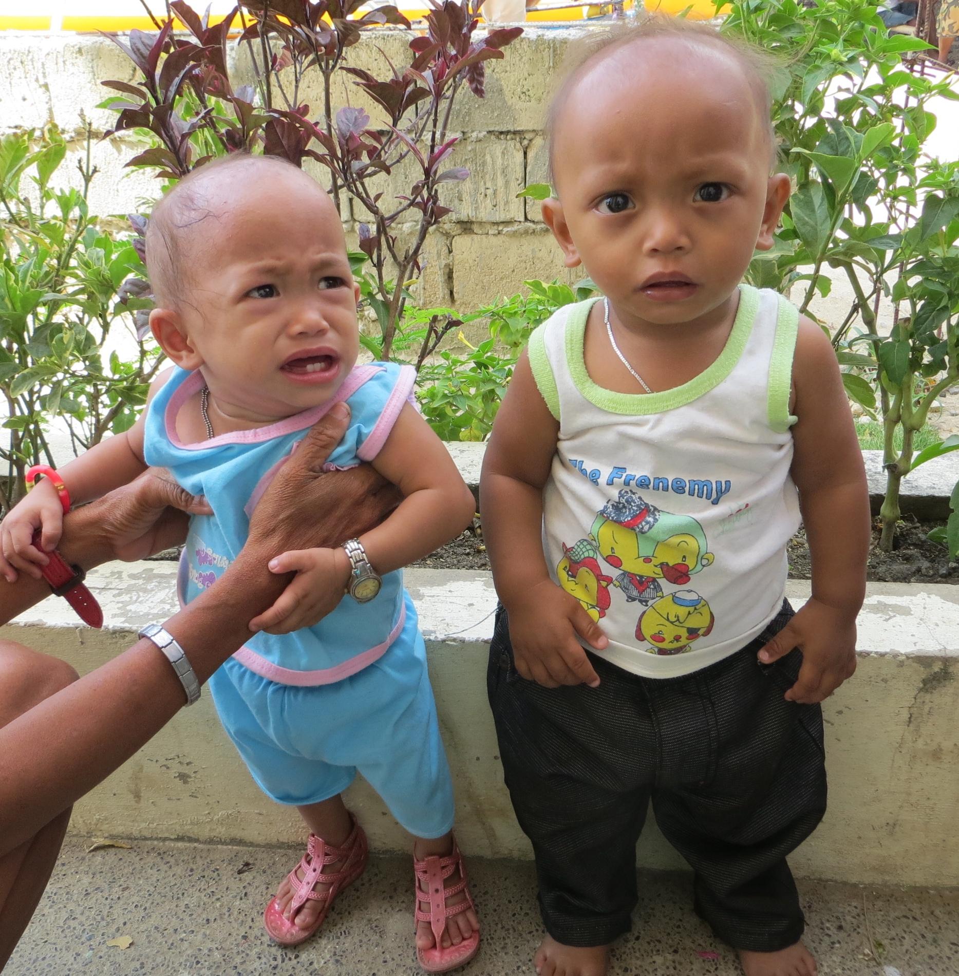 14 Monate altes Kleinkind mit Unterernährung und gleichaltriges, normal entwickeltes Kleinkind