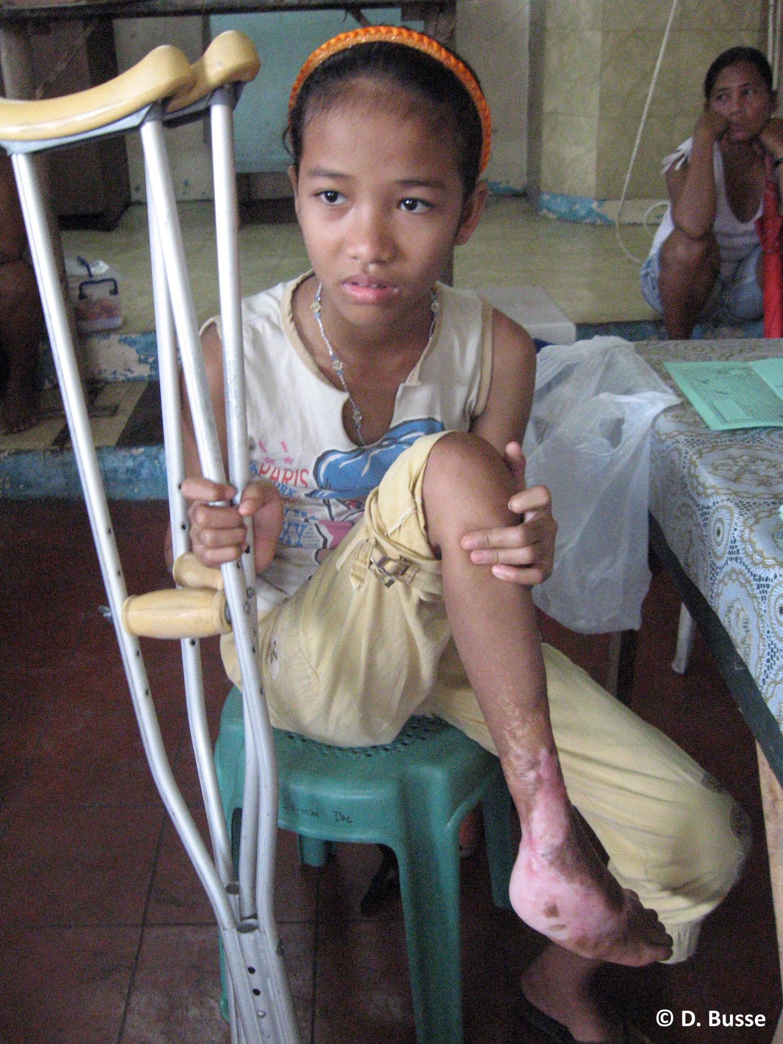 Mädchen mit Verletzung des rechten Fußes nach Verkehrsunfall