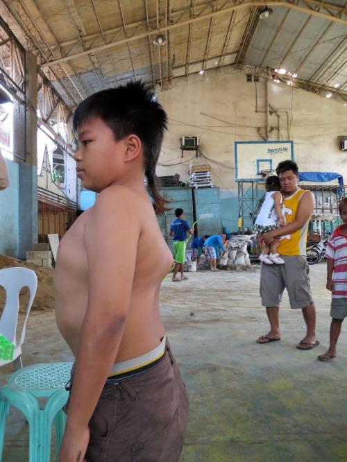 13-jähriger Junge mit Verdacht auf Wirbelsäulentuberkulose. Nach Sturz beim Basketballspiel sind der 10. und 11. Brustwirbel gebrochen.