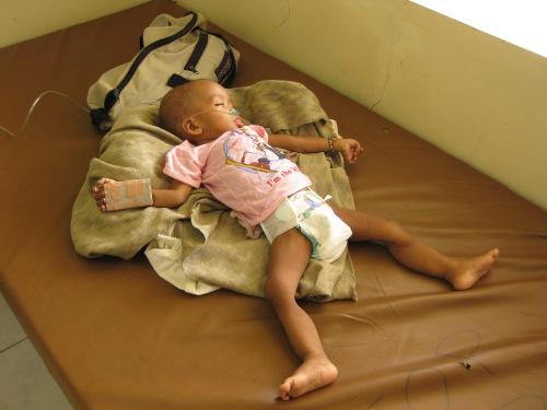 Immer wieder werden stark unterernährte Kinder in die Ambulanz gebracht