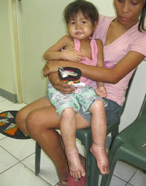 Unterernährung auf den Philippinen
